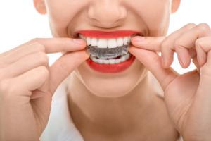 Zahnarzt Weyhe Schienentherapie